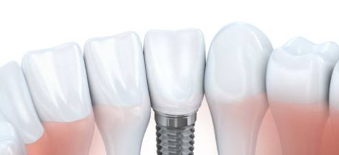 Inquire about dental implants